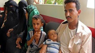 Raging Yemen Civil War Worsening Humanitarian Crisis