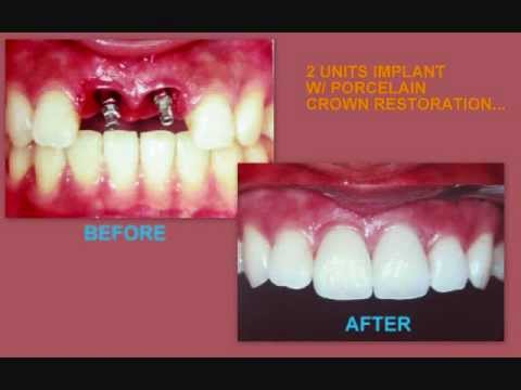 Dental Implants-affordable at Angeles City, Philippines +639209201549