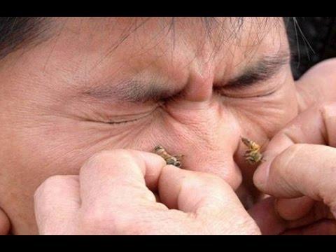 هل تعلمو ماهي وصية الرسول صلى الله عليه وسلم لعلاج التهابات الجيوب الأنفية !