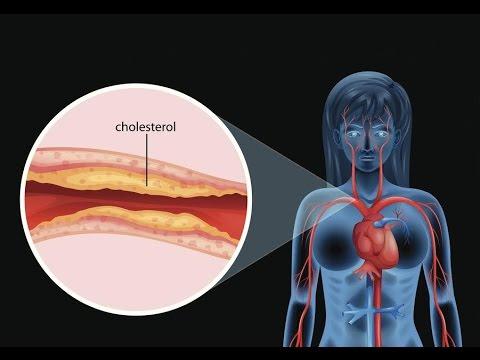 Heart Disease and Menopausal Women