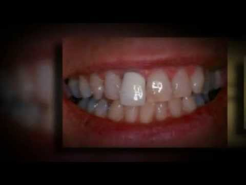 Temporary Dental Crowns