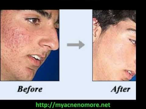 Acne Cure Best Acne Cure Mike Walden Acne No More