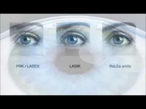 近視雷射PRK-LASIK-ReLEx smile的差別(微笑眼科)