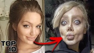 Top 10 INSANE Botched Surgeries