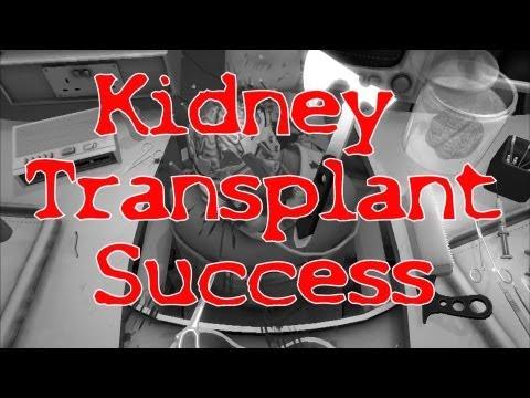 Surgeon Simulator 2013 Full Version   Kidney Transplant Success! (B Rating)   Tutorial / Walkthrough