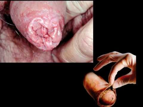how to kill bacteria from foreskin