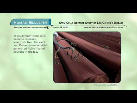 Science Bulletins: Stem Cell Advance Study of Lou Gehrig's Disease
