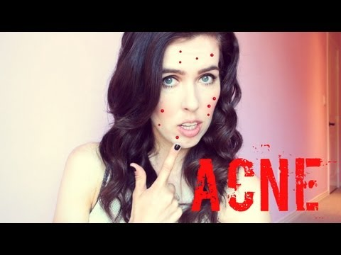 ♥ How To ♥ Cover Up Acne!