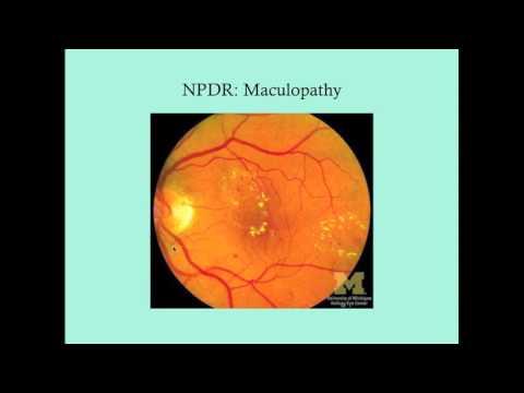 Diabetic Retinopathy - CRASH! Medical Review Series thumbnail