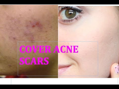 HOW TO COVER UP ACNE SCARS AND BLEMISHES