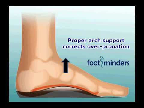 Foot Pain Due To Flat Feet And Over Pronation An Easy