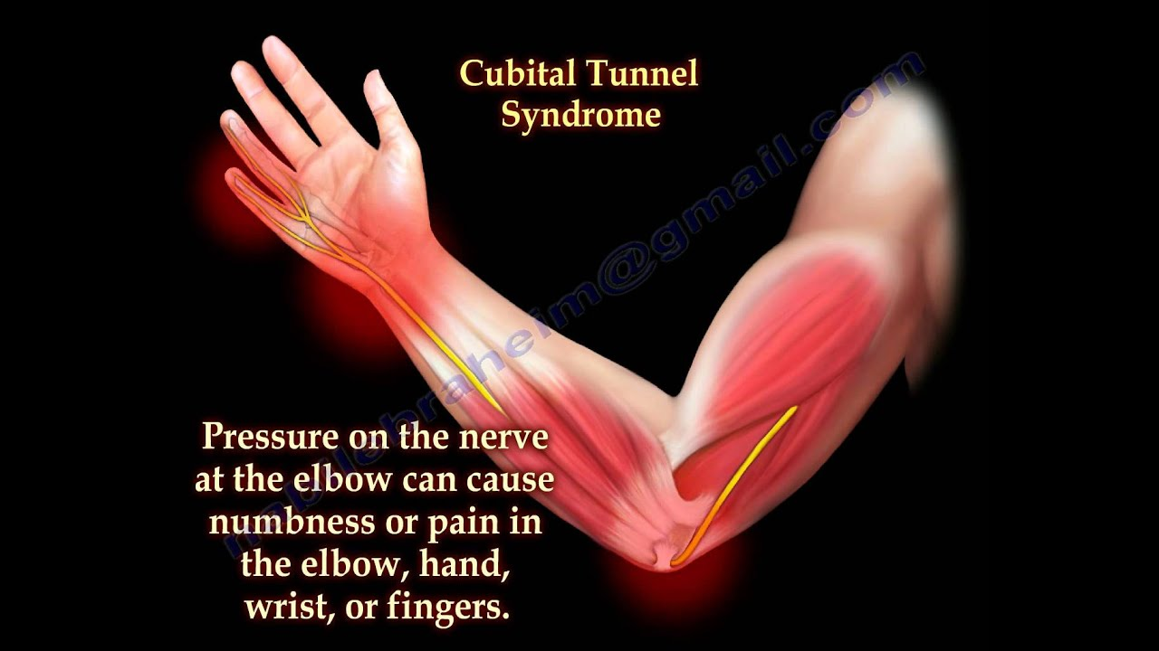 cervical neuropathy symptoms