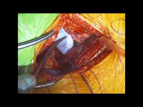 Surgical Procedure- Direct Anterior Total Hip Replacement