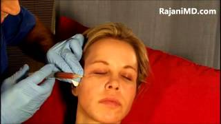 Watch Dermasculpt Microcannula Injection for PRP Dr Rajani Portland Oregon