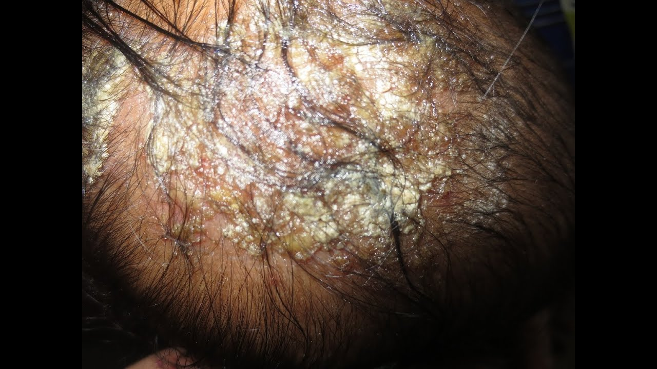 dermatitis in babies #11
