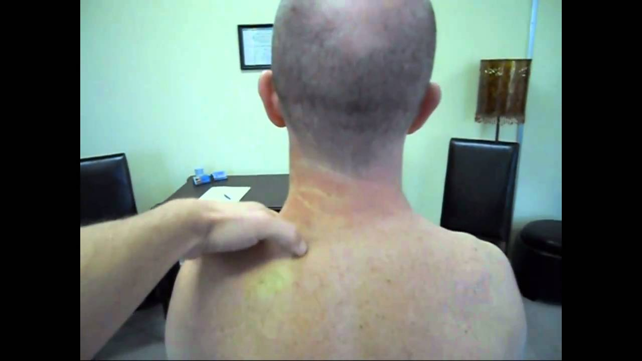 Neck Strain Fixed With Two Manual Therapy Treatments YouTube