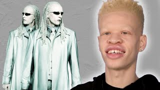 People With Albinism Review Albino Characters From Film