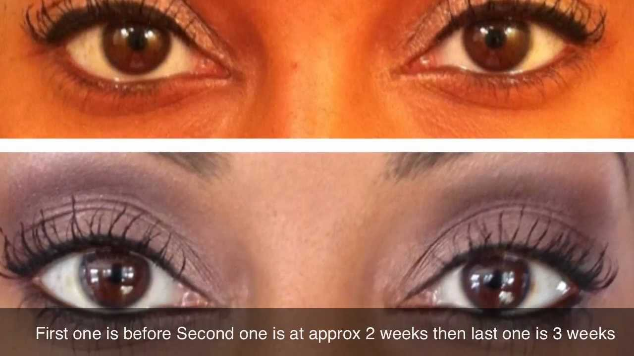 How To Grow Long Healthy Eye Lashes Using Castor Oil