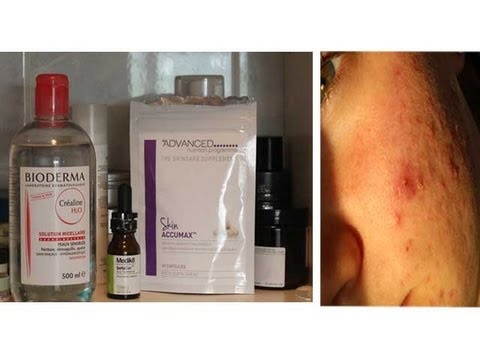 Products That Acutally Work For Acne Skin