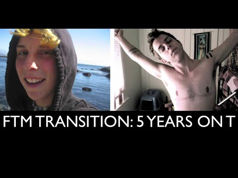 FTM Transition: 5 Years on Testosterone Picture/Timeline