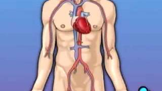 PreOp® Coronary Artery Bypass CABG) Heart Patient Education
