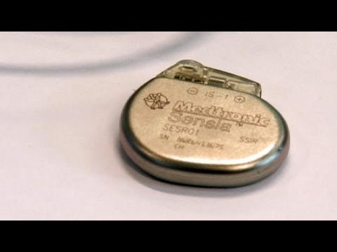 Shrinking the pacemaker - hitech
