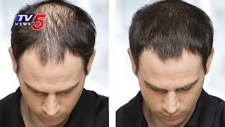 Latest Treatments For All Type Of Hair Problems | Vibes Clinic | Health File | TV5 News