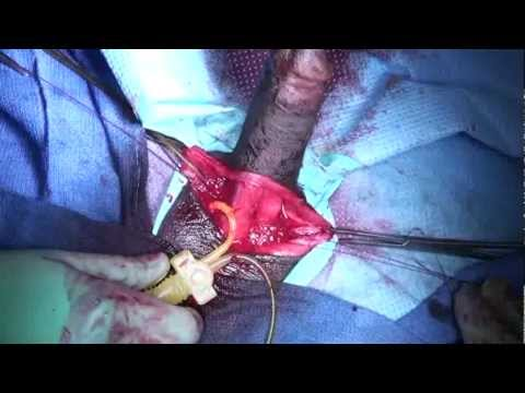 Inflatable Penile Implant - Penile Prosthesis Surgery - Rafael E. Carrion MD
