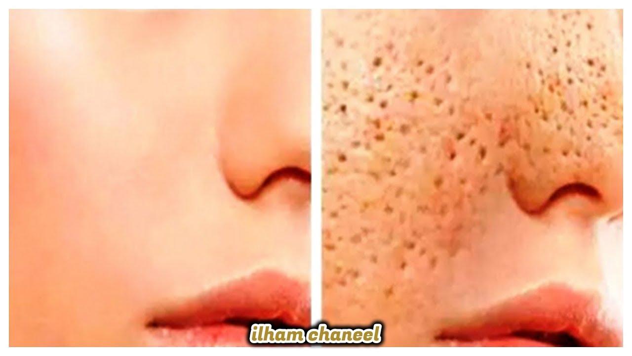 ملعقة نشا تخلصك من المسام الواسعه  وتزيل حبوب الوجه و حروق الشمس وتجعل بشرتك نظيفة ناعمة طول اليوم