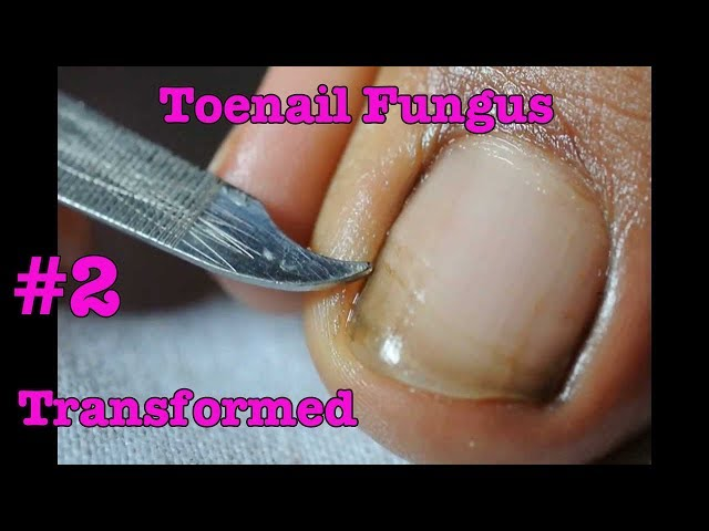 Toenail Fungus Transformed into Pretty nail #2 | Toenail pedicure tutorial - November 2017