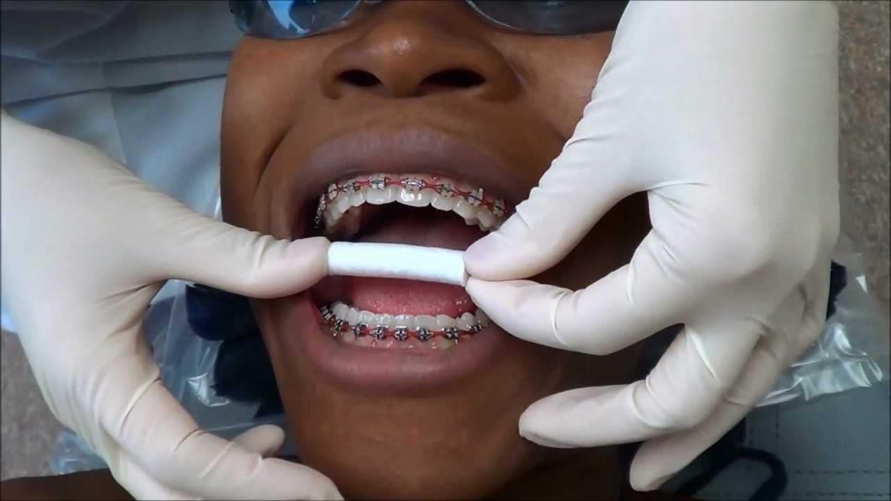 On how teeth to photoshop whiten