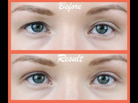 Asian beauty secret revealed: non surgical eyelid lift! Music Videos