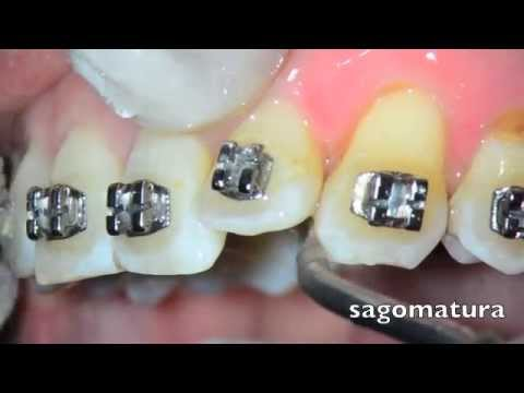 Orthodontic Stripping - Tooth Stripping - Sonostripping Tips - Sonosurgery