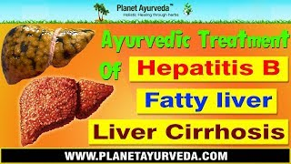 Ayurvedic Treatment of Hepatitis B, Fatty liver & Cirrhosis