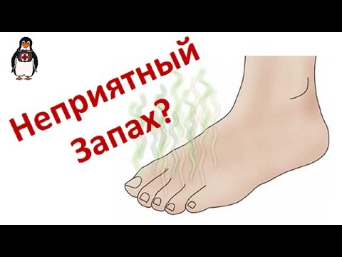 Что делать если ноги воняют и потеют