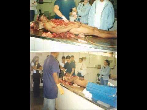 AUTOPSIA Anatomia Patologica