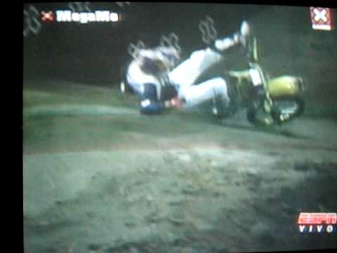 X games 15 moto x best trick Travis Pastrana 360 backflip crash