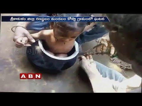 Child Got struck in Aluminium Pot | Srikakulam | ABN Telugu
