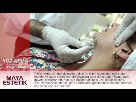 Ameliyatsız İple Yüz Germe Yüz Asma Ultra V Lift - Maya Estetik