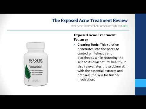 Exposed Acne Treatment Review