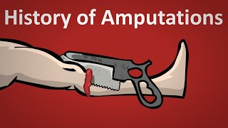 The History of Amputation Explained
