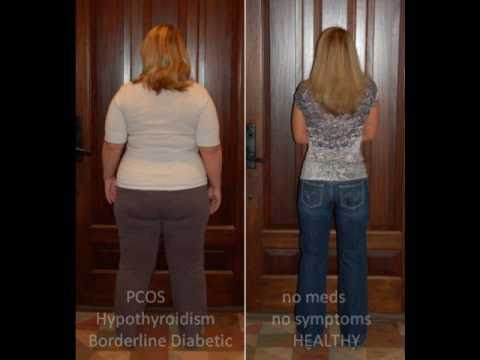 HCG Protocol Before and After - Goal - YouTube