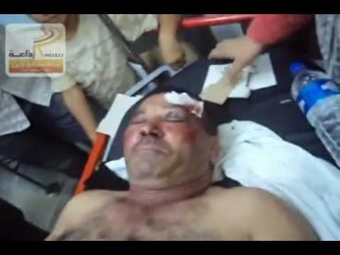 image vidéo ثمانية جرحى وفاة كاتب عام نداء تونس بتطاوين.