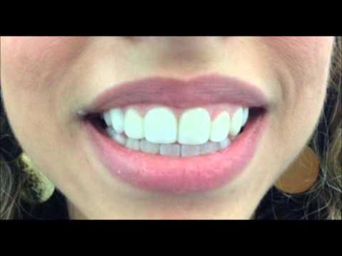 ציפויי חרסינה לפני ואחרי l טיפול GUMMY SMILE - אסתטיקה דנטלית l ד