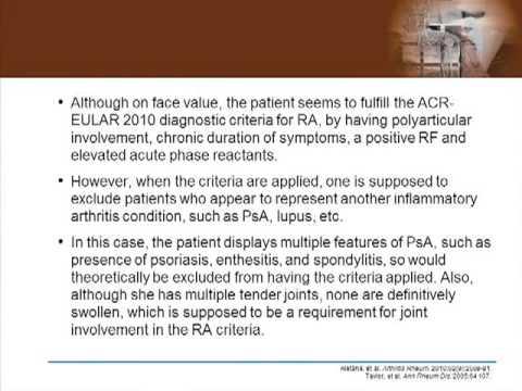Managing Complex Psoriatic Arthritis Case Study