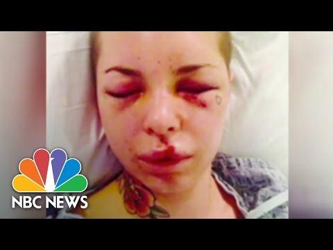 Christy Mack Assaulted By MMA's 'War Machine' | NBC News
