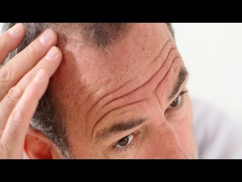 Pros & Cons of Propecia (Finasteride)   Thinning Hair