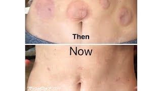 Tricia Grace | Official Cupping Hysterectomy Scar Results  | PT. 5