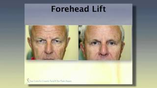 Introduction to Forehead Lift with Dr. Lawrence G. Kass, M.D.