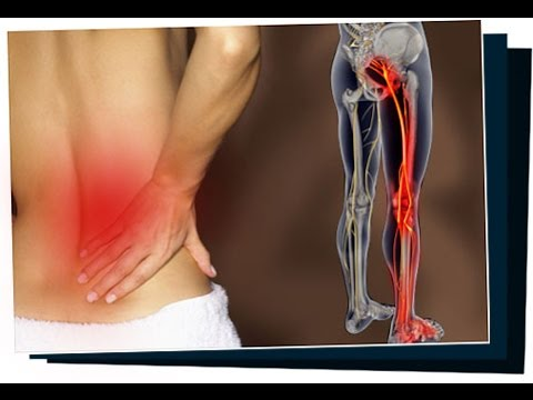 Sciatica SOS Program + Bonuses Review - Sciatica SOS reviews